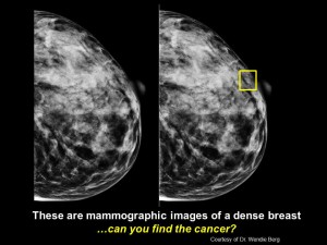 Mammograph of a Dense Breast
