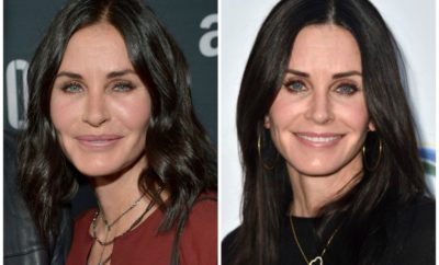 courtney cox, fillers removed, before, after